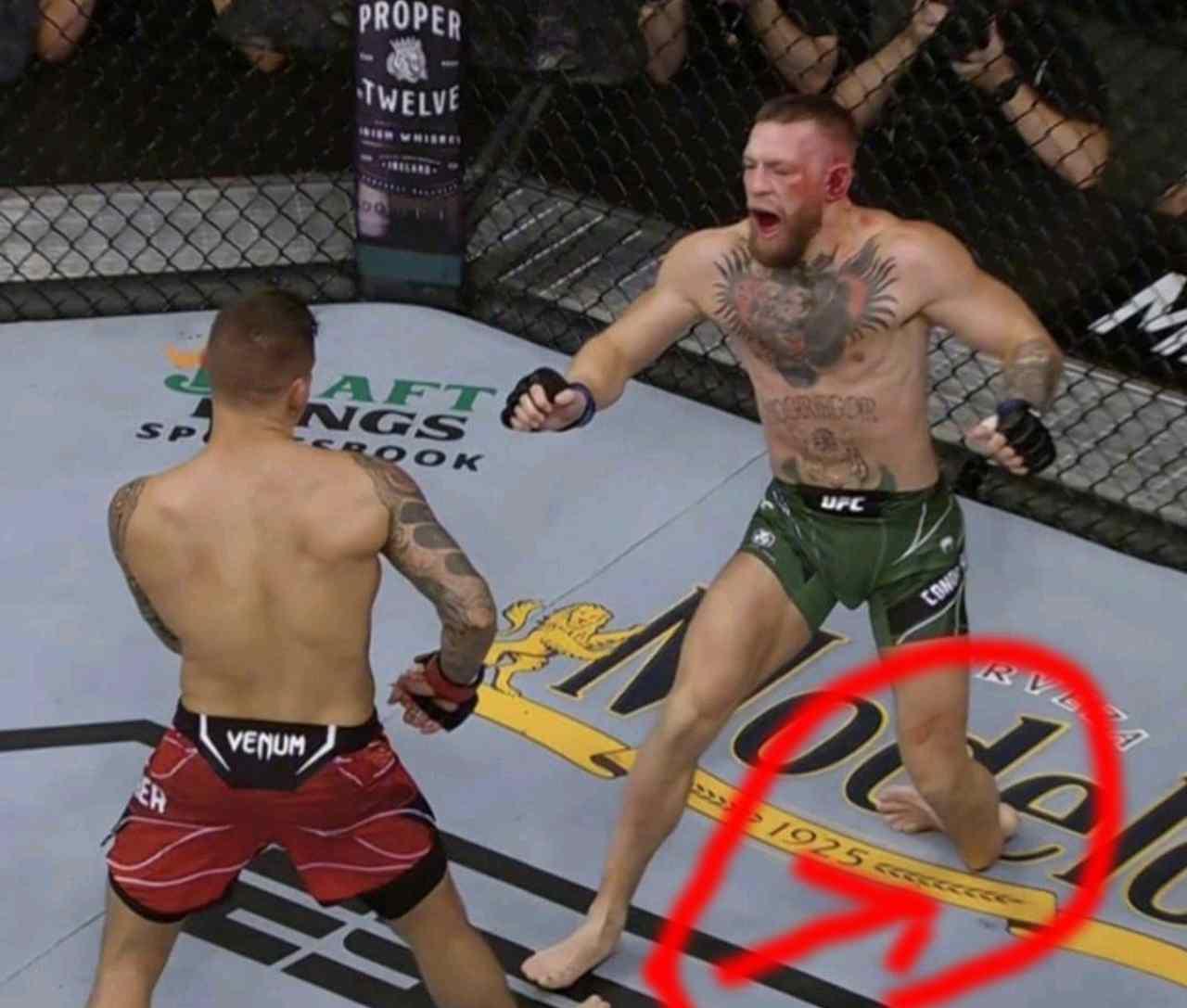 McGregor infortunio