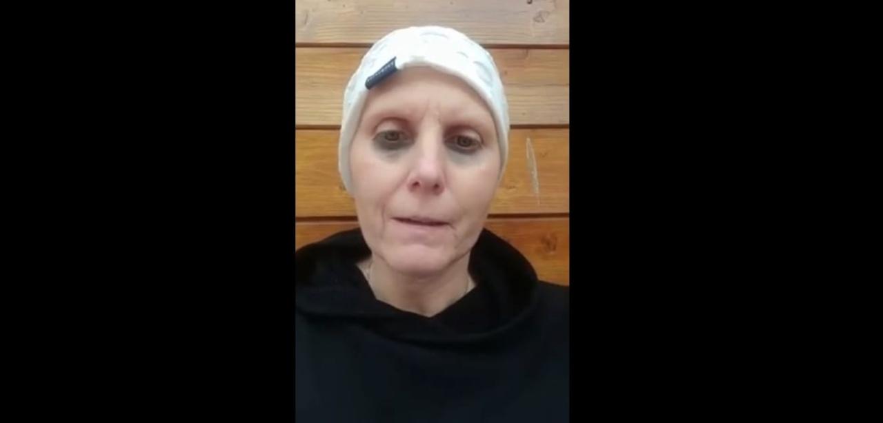 Daniela Molinari cure antitumorali